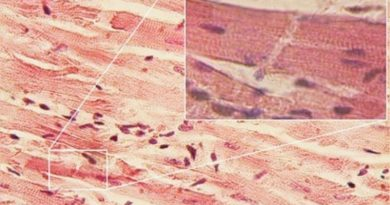 Novo coronavírus é capaz de infectar as células do músculo cardíaco